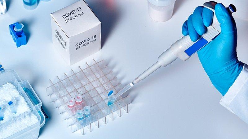 Test covid bioquimicos
